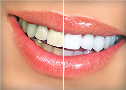 Take Home Whitening Kits | My Dentist | Alex Klim DDS | West Sacramento, CA