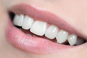 Cosmetic Dentistry - My Dentist, West Sacramento